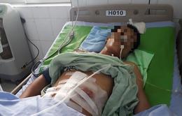 Người đàn ông nhập viện vì súng cướp cò bắn vào bụng