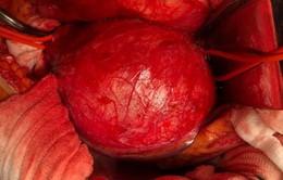 3 giờ căng thẳng cứu bệnh nhân phình động mạch chủ bụng dọa vỡ