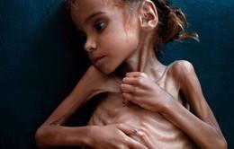 Em bé da bọc xương gây chấn động thế giới về nạn đói ở Yemen qua đời