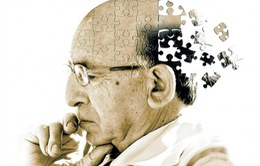 Cách thức hạn chế đãng trí tuổi già
