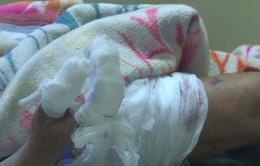 Vụ nổ ở Bắc Ninh: Nhặt đầu đạn sót lại, một người dân bị dập nát bàn tay, nhiều mảnh đạn găm vào cơ thể