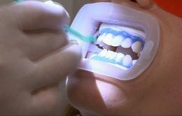 Nha sĩ tại Anh phải được cấp phép mới có quyền cung cấp dịch vụ làm trắng răng