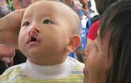 Phẫu thuật miễn phí cho trẻ dị tật khe hở môi vòm miệng