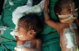 Ấn Độ: 30 bác sĩ, y tá mổ tách thành công cặp song sinh dính liền
