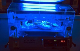Vàng da ở trẻ sơ sinh: nguy hiểm nếu phát hiện muộn