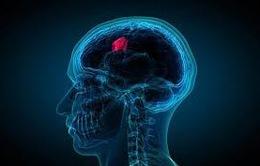 Dấu hiệu cảnh báo bạn có thể mắc căn bệnh u não