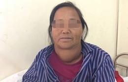 Người phụ nữ 20 năm sống chung với bướu cổ khổng lồ