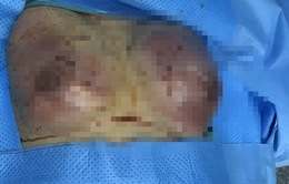 Nâng ngực ở spa, cô gái trẻ bị hoại tử vú