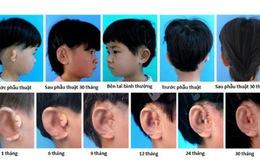 Trung Quốc nuôi và cấy ghép thành công tai từ tế bào sụn