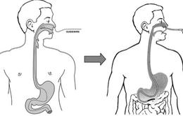 Lạng Sơn: Triển khai nội soi dạ dày qua đường mũi