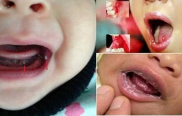 Nhận biết và điều trị nấm miệng