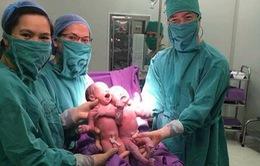 Quảng Ninh: Hai bé sinh đôi cùng trứng đầu tiên nhờ thụ tinh ống nghiệm IVF