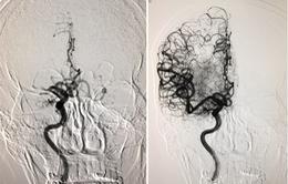 Cấp cứu kịp thời, bệnh nhân đột quỵ não hồi phục sau 24h