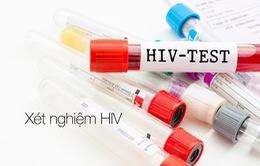 Bàn giao xe hỗ trợ xét nghiệm  HIV/AIDS lưu động cho 12 tỉnh