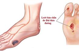 Đái tháo đường có thể gây biến chứng phải cắt cụt chân
