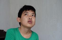 Thương cậu bé không cha đối mặt với nguy cơ biến mất cả hàm răng