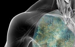 Thừa Thiên Huế: Gia tăng số ca mắc bệnh lao mới, nguy cơ lây nhiễm lao tiềm ẩn