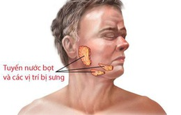 Các bệnh của tuyến nước bọt có nguy hiểm?