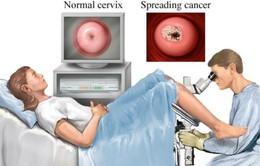 Liệu pháp tế bào mới trong điều trị ung thư cổ tử cung