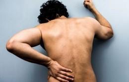Những bệnh lý cần nghĩ ngay tới khi bị đau lưng