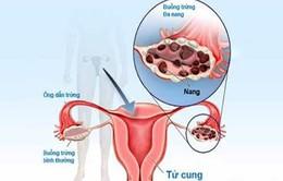 Điều trị hội chứng u đa nang buồng trứng