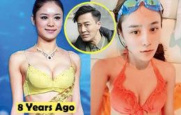 Bạn gái mới của Lâm Phong từng phẫu thuật thẩm mỹ?