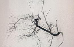 Can thiệp nút mạch nuôi u hỗ trợ phẫu thuật u não lớn
