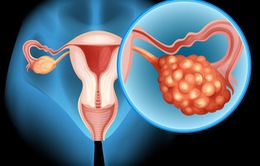 Ba Lan phát triển thiết bị chẩn đoán ung thư buồng trứng sớm