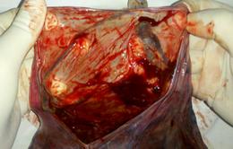 Cứu sống thành công thai nhi có dây rau bám màng