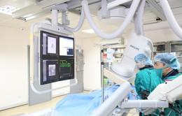 Nút mạch u xơ tử cung không cần phẫu thuật