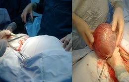 """Hà Tĩnh: Phẫu thuật 2 khối u nang buồng trứng """"khủng"""""""