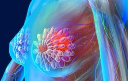 Đừng chủ quan: Nguy cơ ung thư vú tái phát
