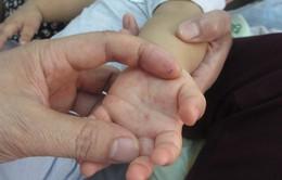 Nghệ An: Bệnh ho gà và tay chân miệng gia tăng