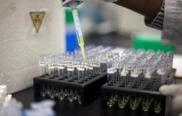 Nhật Bản thử nghiệm phương pháp xét nghiệm nước tiểu phát hiện ung thư