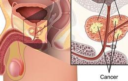 Yếu tố làm tăng nguy cơ mắc ung thư tuyến tiền liệt mà nam giới cần biết