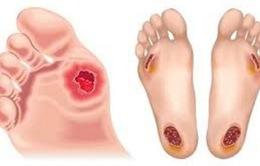 Chăm sóc bàn chân ở bệnh nhân đái tháo đường