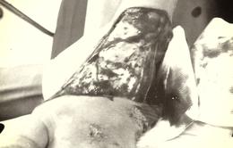 Cứu cô gái bị lóc da toàn bộ mu bàn chân do tai nạn giao thông