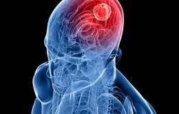 Triệu chứng cảnh báo ung thư não