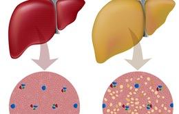 Chế độ dinh dưỡng nào phòng tránh gan nhiễm mỡ?