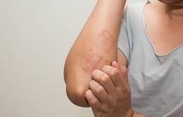 Sử dụng thuốc chống dị ứng khi mang thai như thế nào cho an toàn?