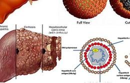 Gần 70% ca ung thư gan có nhiễm virus viêm gan B