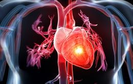 Việt Nam: Cứ 3 người trưởng thành có 1 người có nguy cơ mắc bệnh tim mạch