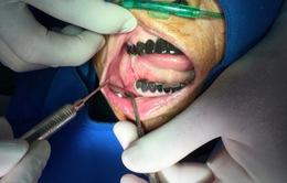 Cụ bà 91 tuổi được cấy ghép răng