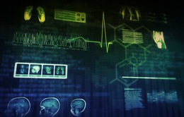 Ứng dụng trí tuệ nhân tạo để đưa ra phác đồ điều trị ung thư