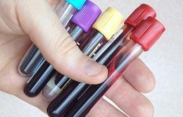 Xét nghiệm máu tại các bữa tiệc – xu hướng chăm sóc sức khoẻ kiểu mới