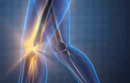 Các bệnh lý xương khớp nguy hiểm hay gặp nhất