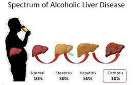 Rượu và các bệnh về gan
