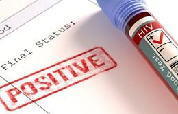 Làm thế nào để biết phương pháp điều trị HIV có hiệu quả?