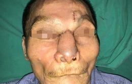 Phẫu thuật tái tạo toàn bộ mũi, má cho bệnh nhân ung thư da kích thước lớn
