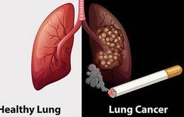 Ai nên tầm soát ung thư phổi?